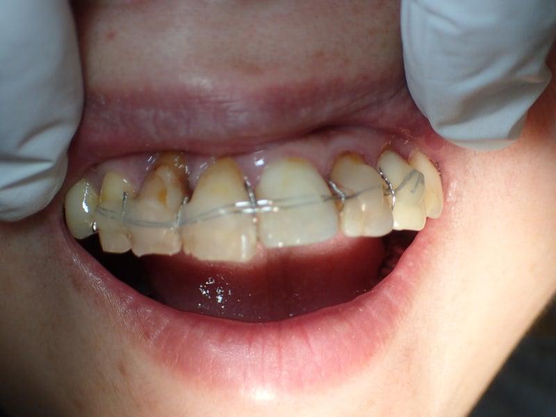 外傷歯の固定 | GP歯科医・・・日々の彼是