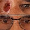 眼窩エピテーゼの画像