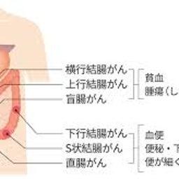 画像 大腸ガンの反省(1) の記事より