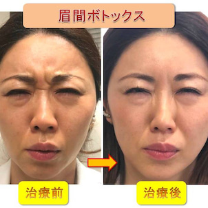 眉間ボトックスと目尻ボトックスの合わせ技で上瞼が二重に被るのを改善できた。ビフォーアフター有。の画像