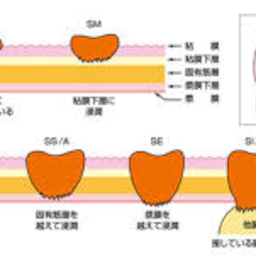 画像 ステージ4及び高齢者の駄目ぶり---大腸ガンの反省(3) の記事より 6つ目