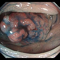 画像 ステージ4及び高齢者の駄目ぶり---大腸ガンの反省(3) の記事より 4つ目