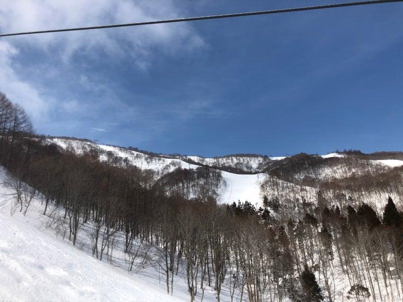 場 スキー 天気 高原 油 夏