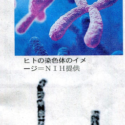 画像 ガンでも女性が有利---大腸ガンの反省(4) の記事より 4つ目