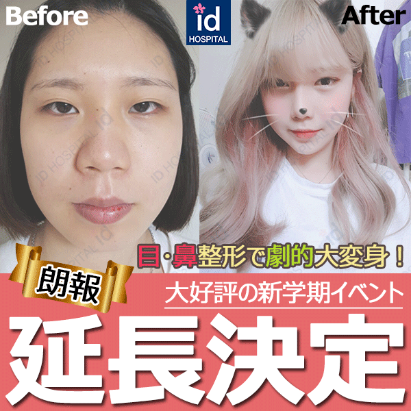 春イベント 割引き id美容外科
