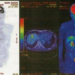 画像 PET CT---ガンの転移先 の記事より 4つ目