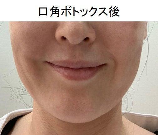 口角 ボトックス 効果 口角のボトックスについて 唇・顎・輪郭