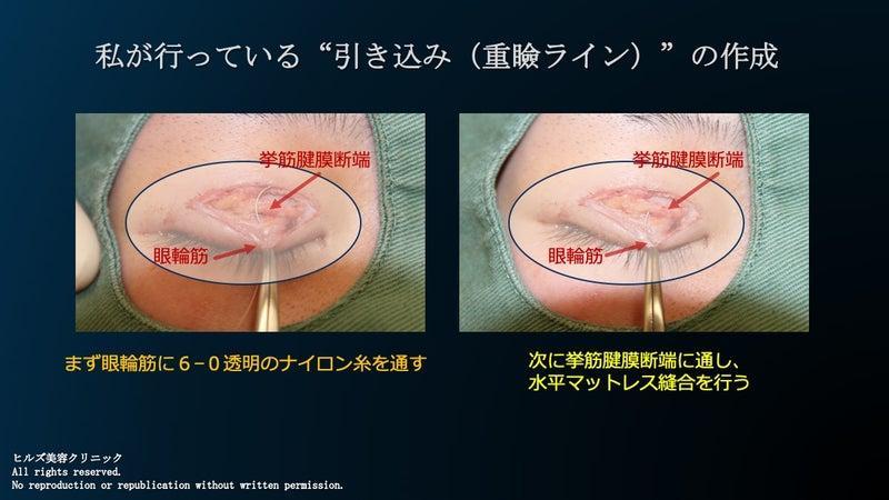 二重重瞼線(重瞼ラインの作成) やり方