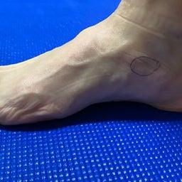 画像 有痛性外脛骨のインソールについて の記事より