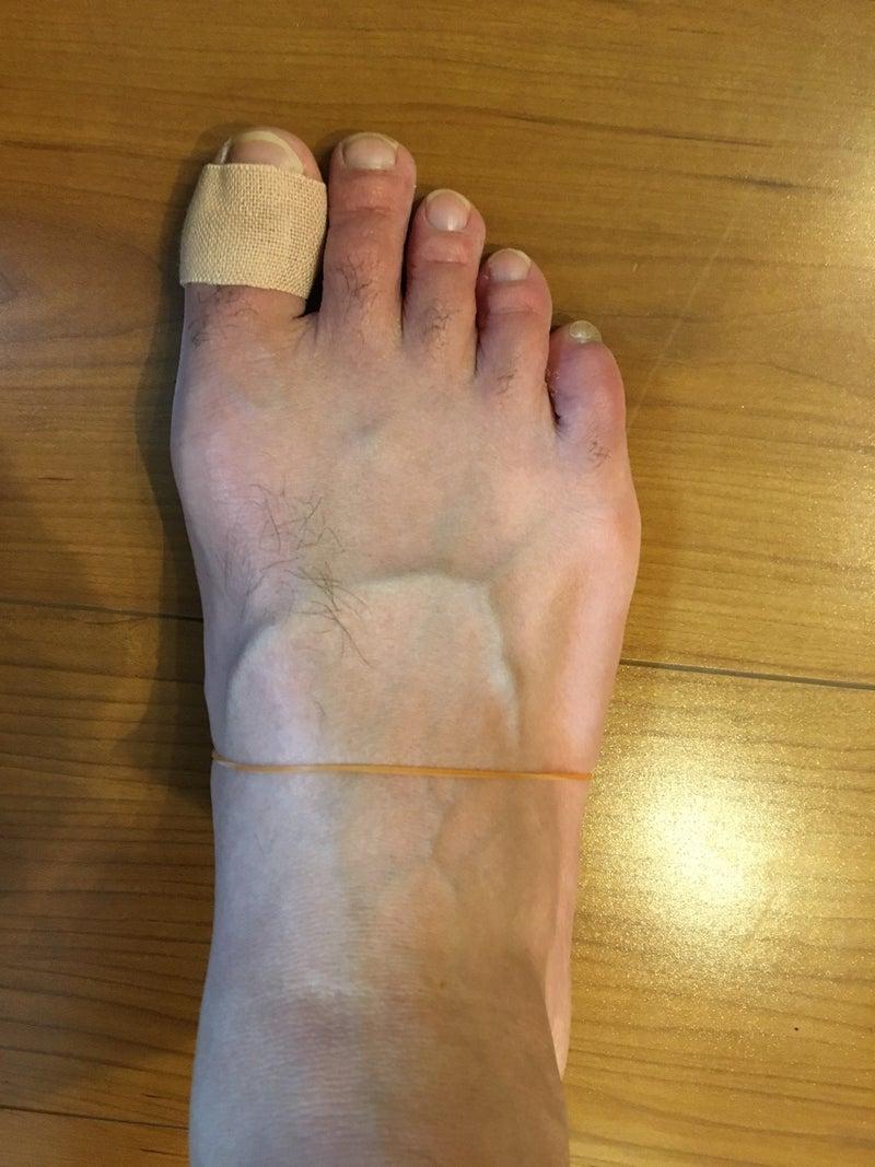 足 の 親指 の 付け根 が 痛い テーピング