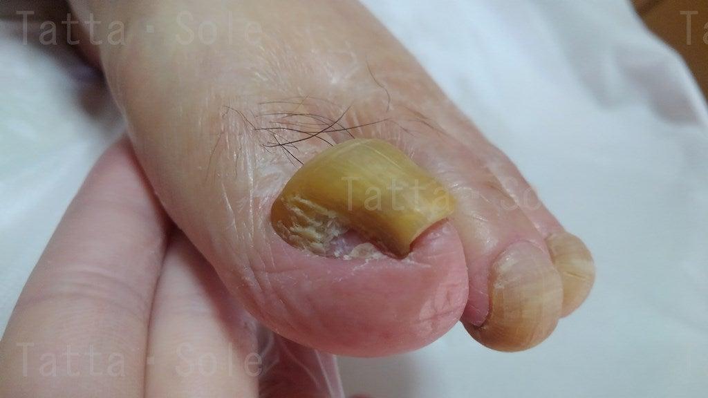 爪甲こうわん症