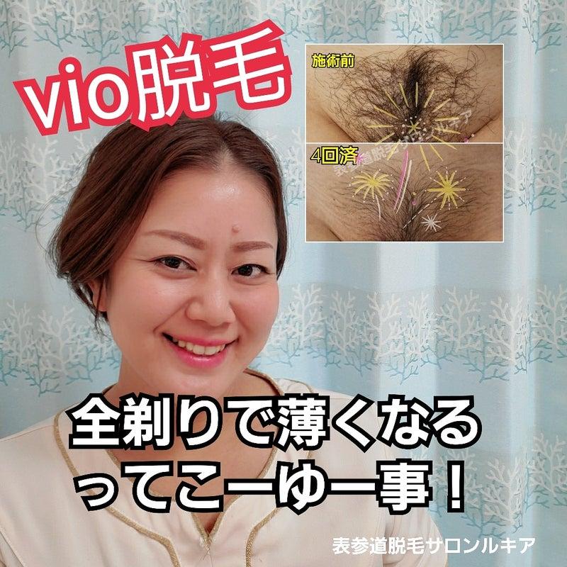 なる Vio 回 薄く 脱毛 で 何 除毛クリームで毛は薄くなるの?毛を薄くしたいならメンズ脱毛がおすすめ!