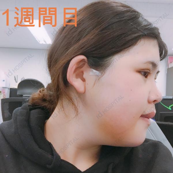 輪郭整形 目整形 鼻整形 両顎 両顎手術 ルフォー