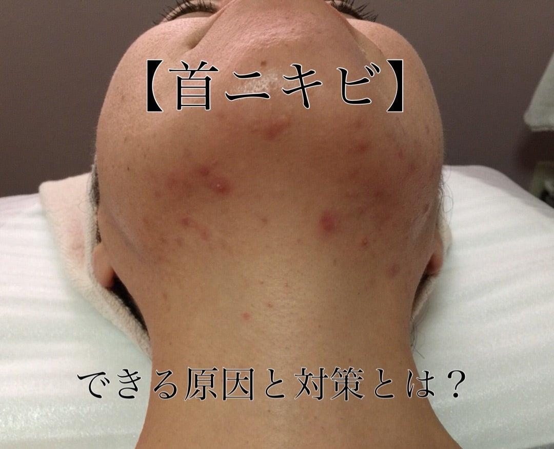 首 ニキビ 原因 皮膚科専門医が教える「首にできる二キビ(ざ瘡)」の原因と、正しい...