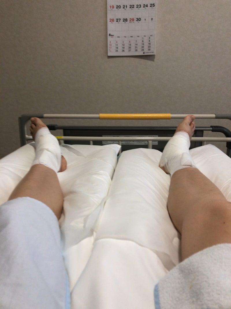 性 外 脛骨 有 テーピング 痛