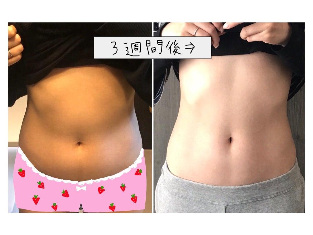 お腹痩せ途中経過と続けられた理由 | Shiori's「on」style〜干物女の ...