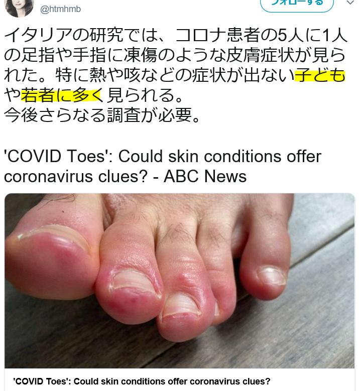 の 指 足 コロナ