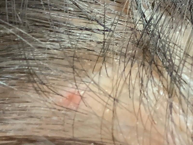 かゆみ 頭皮 の