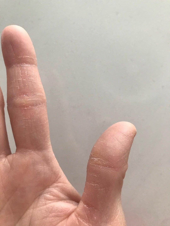ひび割れ 親指