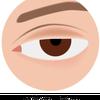 眼瞼下垂症についての画像