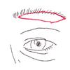 眉毛下切除術(眉毛下切開)についての画像