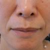 グロースファクターによるほうれい線治療 50代女性④の画像