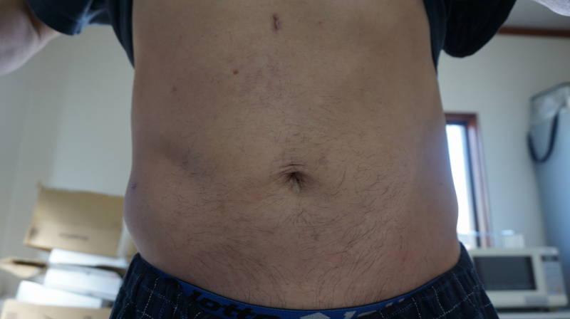 お腹 の 気 大正 製薬 脂肪 が なる の タブレット 方 に