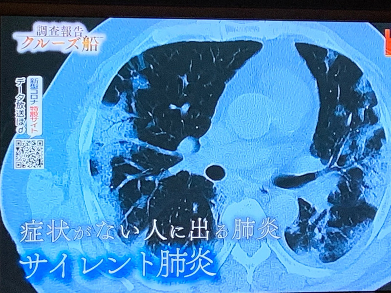 サイレント 肺炎
