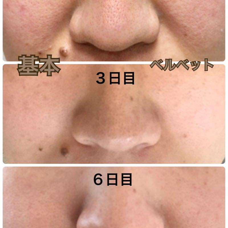治療 いちご 鼻 ブツブツするいちご鼻の治し方。鼻の角栓をスッキリ除去! |