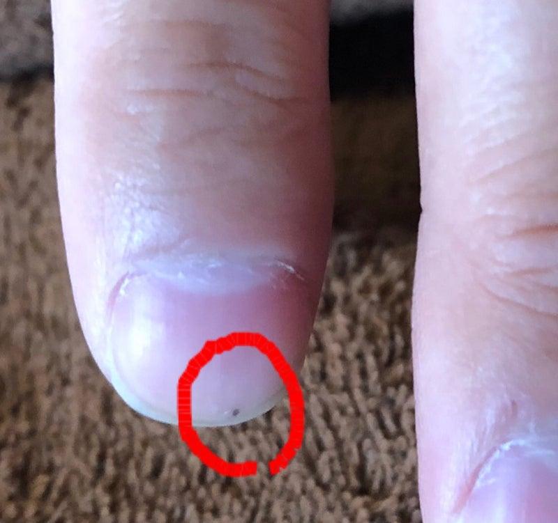 黒い 爪 点 中 の