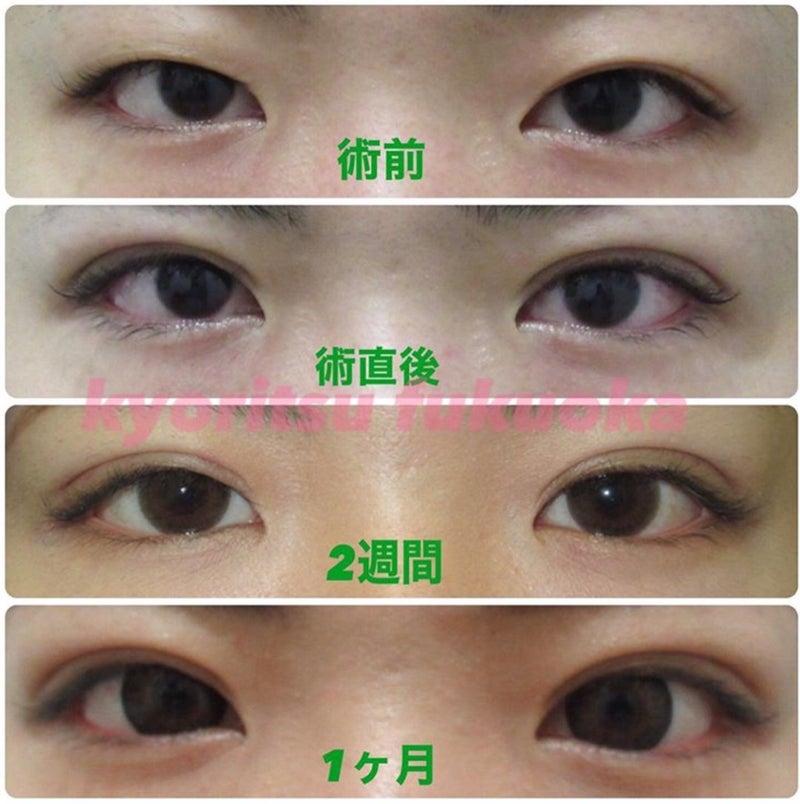 共立 美容 外科 ダーマペンの効果と治療の流れ ...