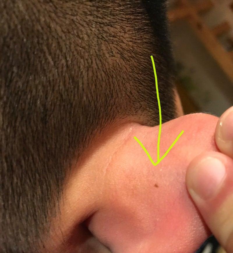の 後ろ ほくろ の 耳