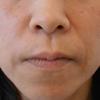 グロースファクター治療によるほうれい線治療 40代女性⑯の画像