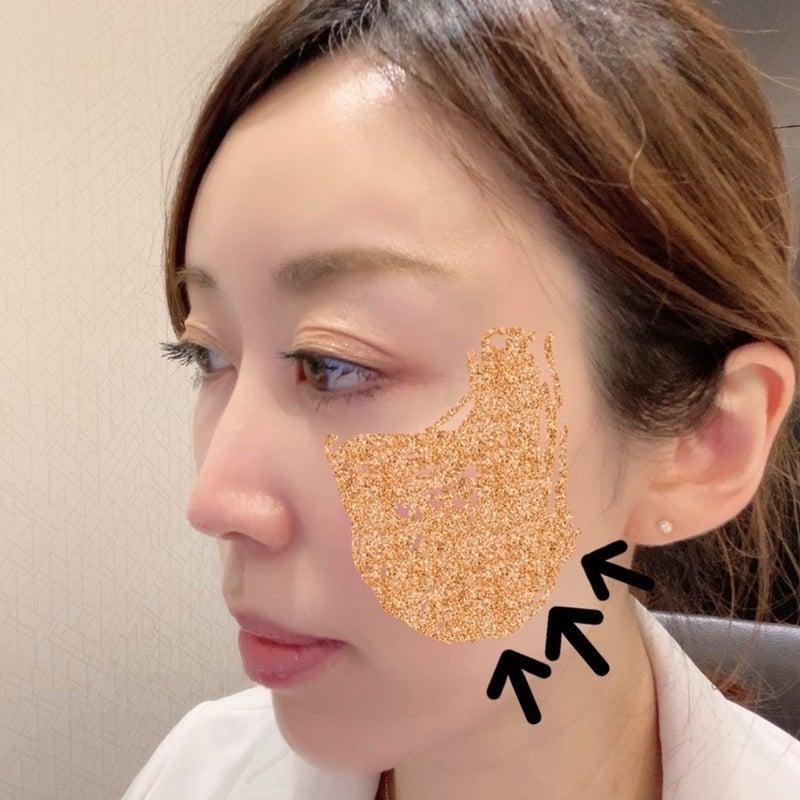 女医 婚 活 ブログ
