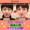 マイナス20歳!韓国人人気ユーチューバーの童顔整形手術経験談!