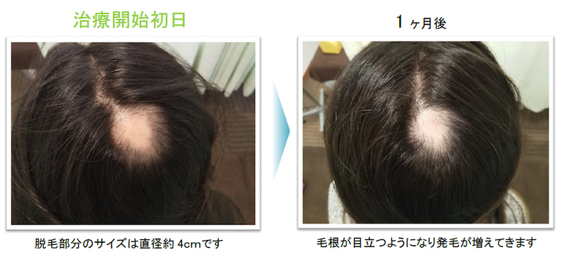 治療 症 円形 脱毛
