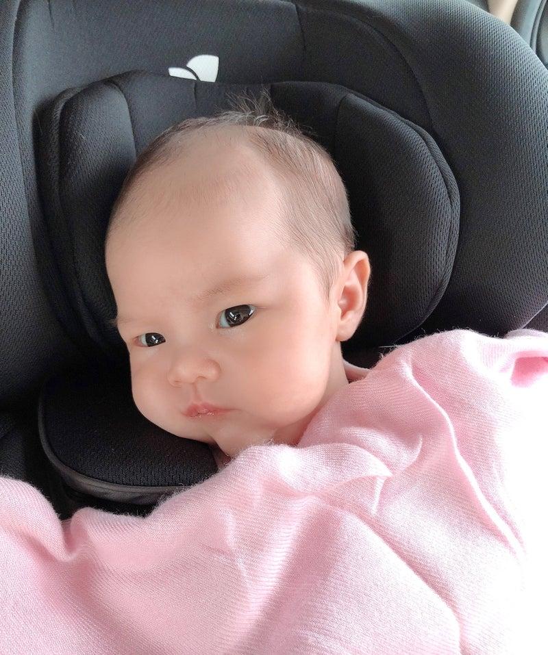 赤ちゃん ニキビ