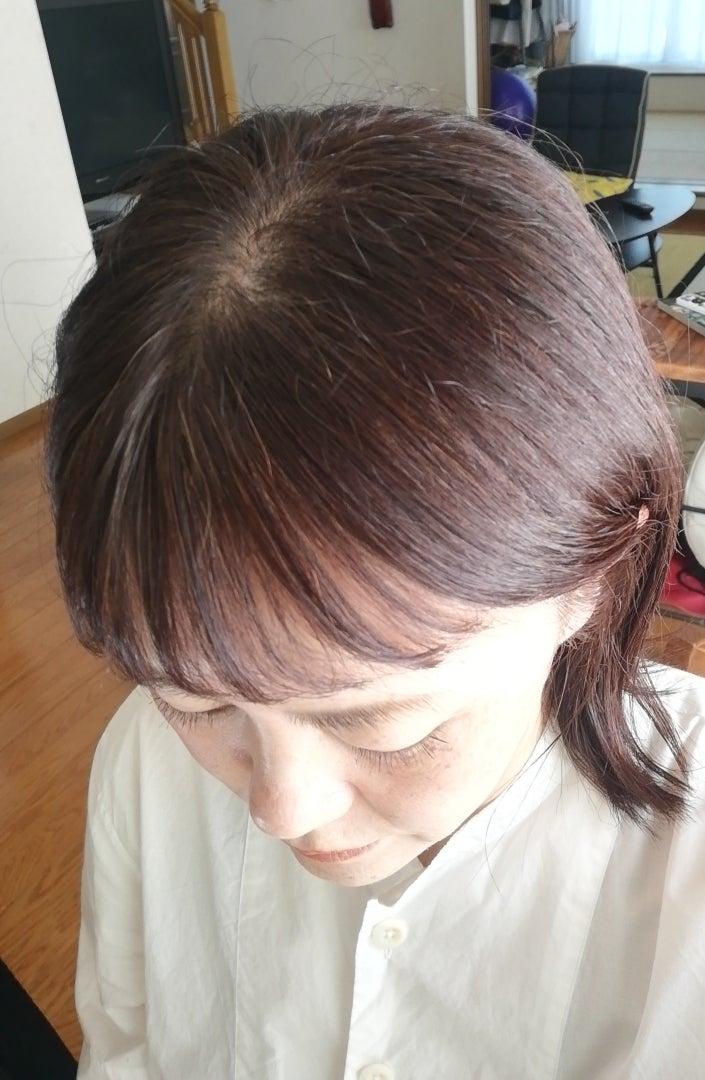 脱毛 治る 円形 前兆 症 円形脱毛症には前兆があるの?円形脱毛症の前兆について解説!