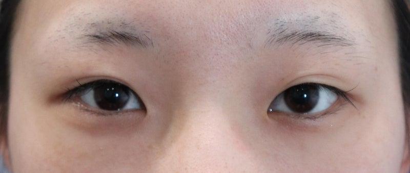 【他院二重修正パート2】 他院で行った二重瞼治療の糸を取る動画 (YouTube動画付き)
