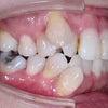 46歳 女性 八重歯が主訴 小臼歯4本親知らず2本抜歯の治療が終了しました。の画像
