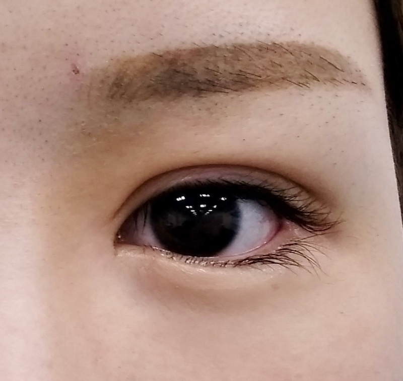 目頭 切開 傷跡 目頭切開の見分け方は?傷跡やまつげで分かる?