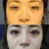 【症例写真】鼻整形!!鼻手術は確かな技術とセンス、バランスが全ての画像