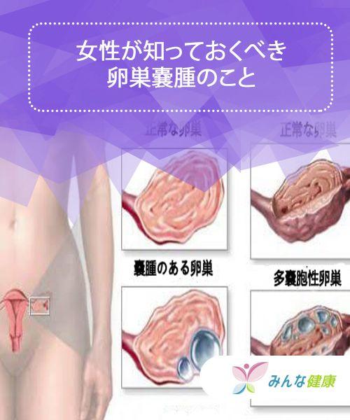 卵巣 嚢腫 手術 卵巣嚢腫の手術——妊娠・出産を希望する場合にはタイミングが大切