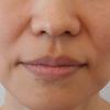 グロースファクター治療によるほうれい線治療 40代女性⑰の画像