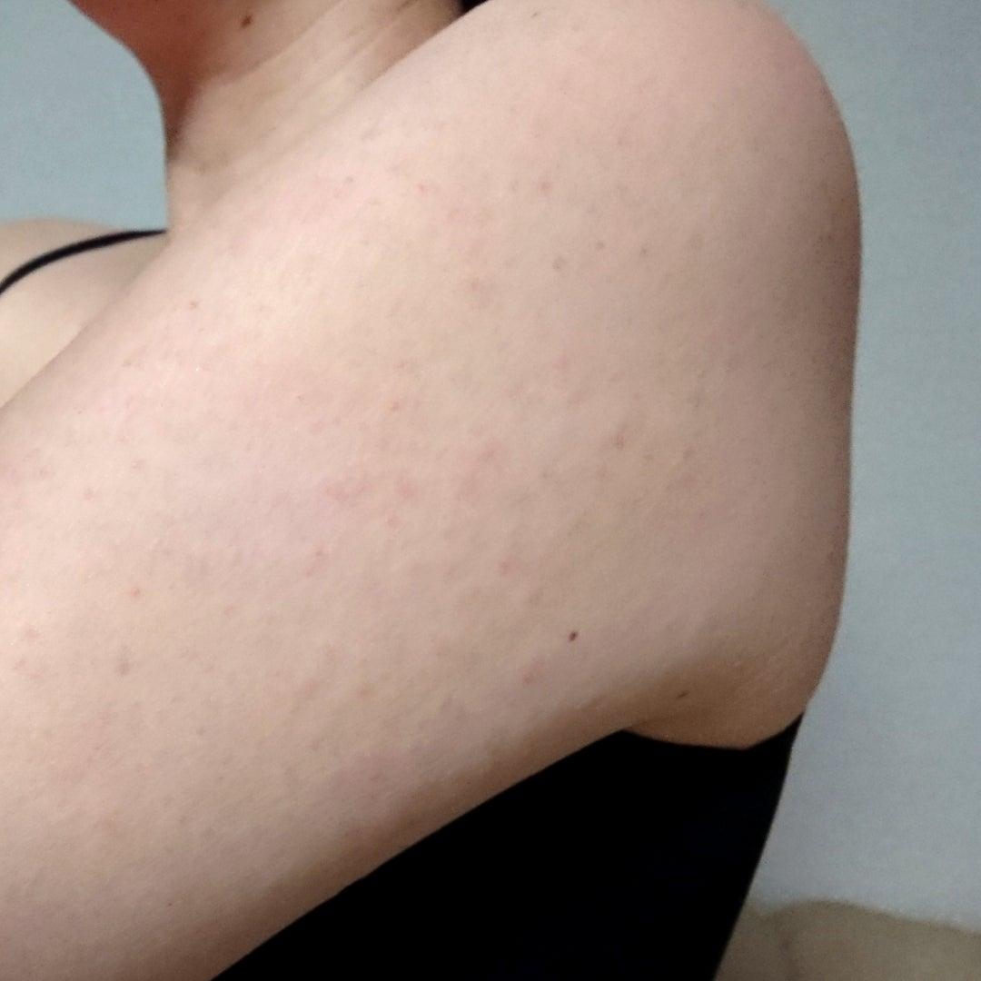 アレルギー 日光