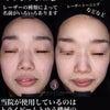 シミ・肝斑〜トーニング治療の画像