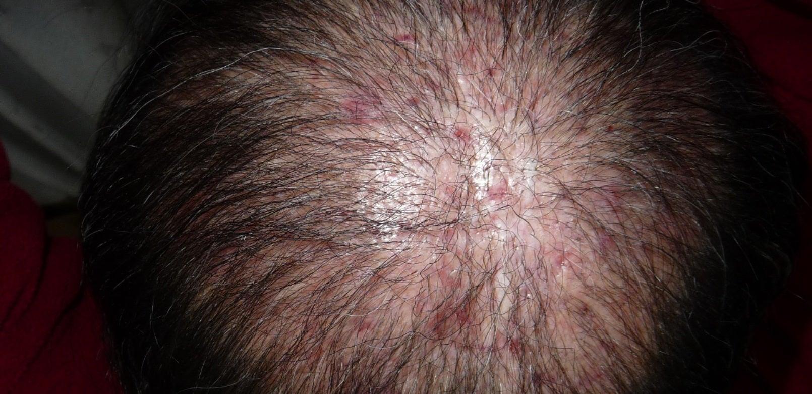 トルコ・エステセンタークリニックで受けた自毛植毛後~3ヶ月目