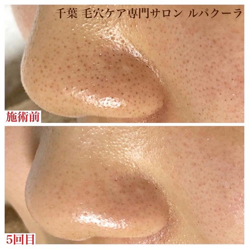 鼻 の 毛穴 の 汚れ 鼻周りに出てくる白い物体は毛穴の汚れ?|あしたの美肌|専門家によ...