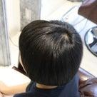 抜毛症だってお洒落を楽しめるんだよ42ー抜毛部位7割の重度の状態から完治!の記事より