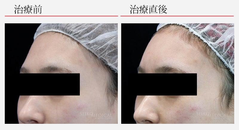 『額(おでこ)のヒアルロン酸注入の他院修正と再治療の症例解説』